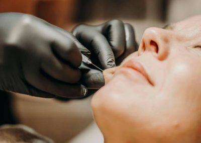 Ansiktsbehandling hos Klinik Pangea
