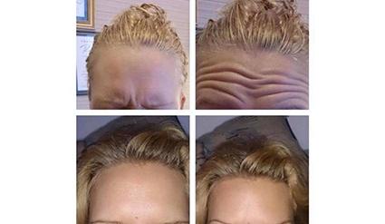 Före- och efterbilder på botox i pannan