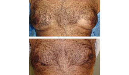 Före- och efterbilder på Desobody behandling på bröst