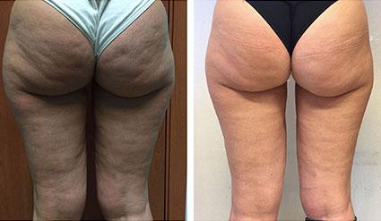 Före- och efterbilder på Desobody behandling på rumpa och ben
