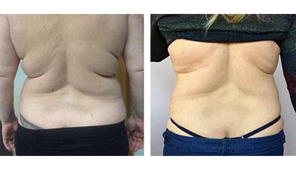Före- och efterbilder på Desobody behandling på rygg