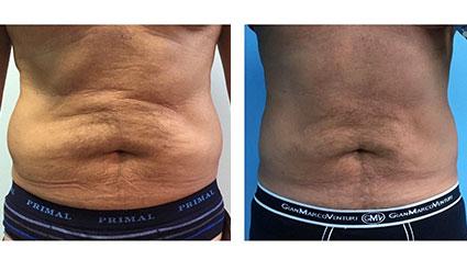 Före- och efterbilder på Desobody behandling på mage