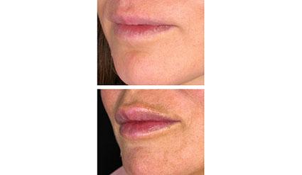 behandling av läppar