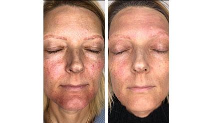Före- och efterbilder på behandling ansikte