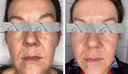 Före- och efterbilder på botox behandling